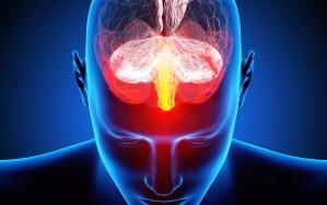 brain2-1-909×758
